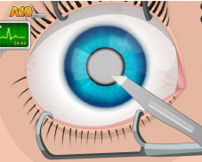 Игра Операция на глаза онлайн